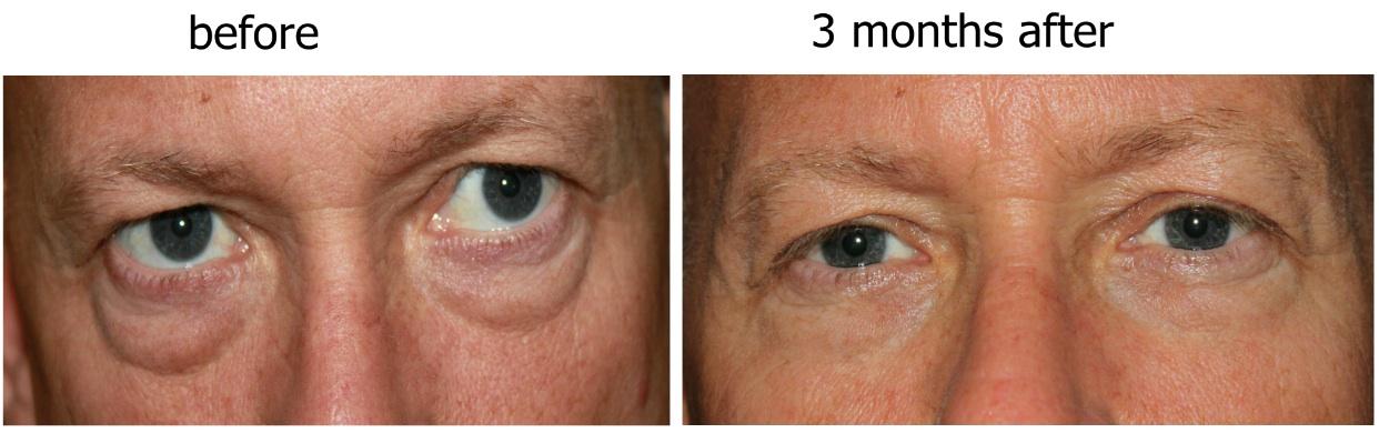 Blepharoplasty Results after 3 Months